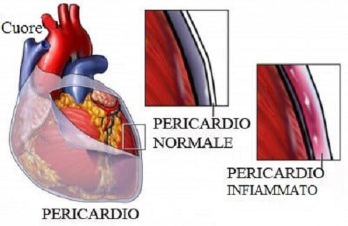 Pericardite: sintomi, cause e trattamento