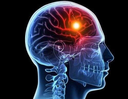 Infarto cerebrale