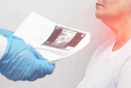 Noduli alla tiroide: sintomi e cause