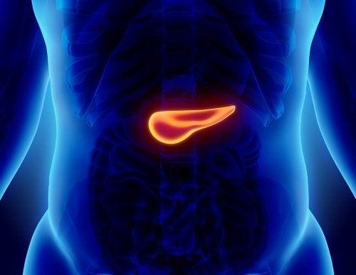 La pancreatite acuta è un'infiammazione improvvisa del pancreas
