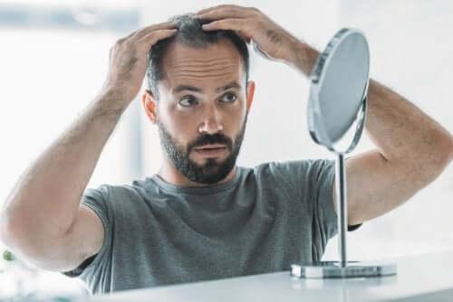 Alopecia androgenetica: sintomi, cause e trattamento