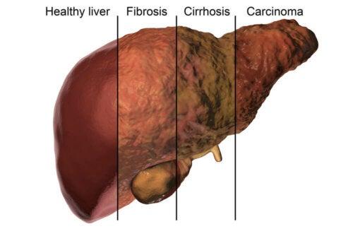 Il fegato e il metabolismo epatico