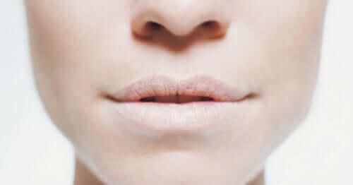 Labbra femminili disidratate