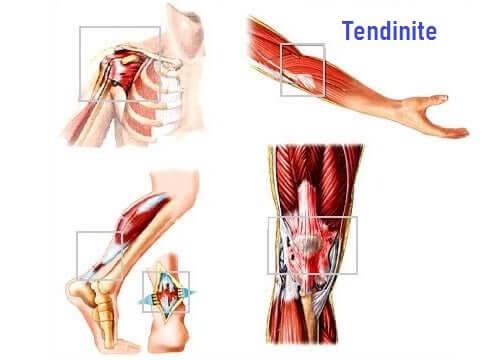 Muscolo con tendinite