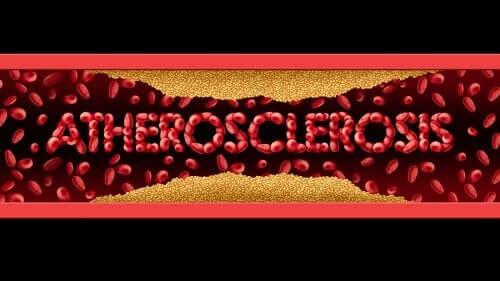 Aterosclerosi: sintomi e trattamento