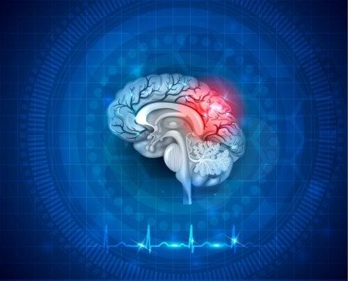 Cervello con evidenziato ictus e neuroplsticità