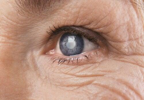 Retinopatia a causa della iperglicemia