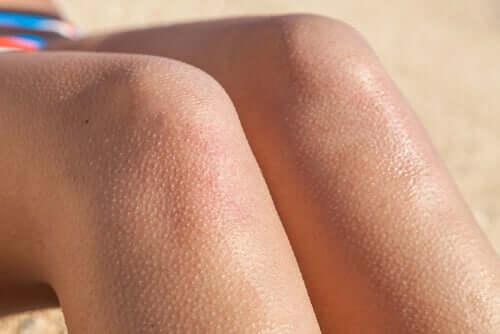 Pelle d'oca sulle gambe