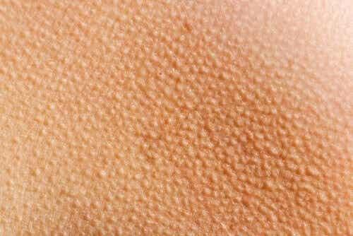 La pelle d'oca: sapete cos'è e cosa la provoca?