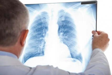 Nodulo polmonare diagnosticato attraverso la radiografia al polmone
