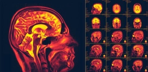 La neuroplasticità: recuperare le funzioni del cervello