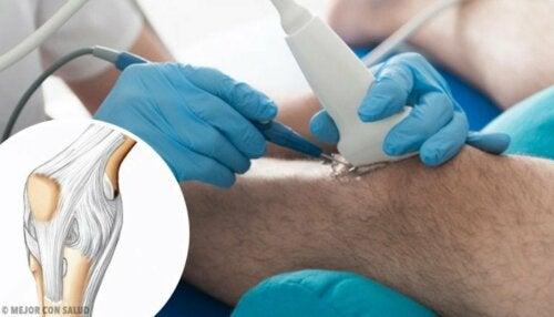Terapia frattura del menisco