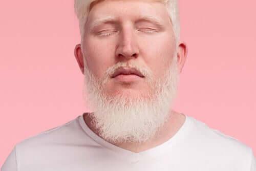 Uomo con lo albinismo in pelle, capelli e occhi.