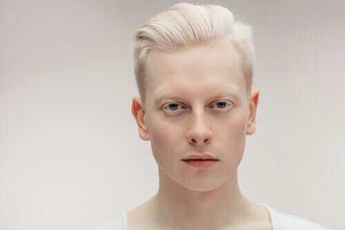 l'albinismo: tutto quello che c'è da sapere
