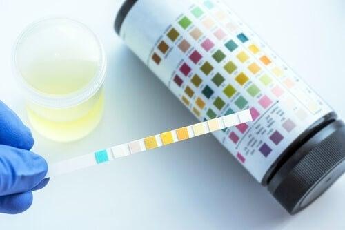 Analisi delle urine: quali disturbi è possibile rilevare?