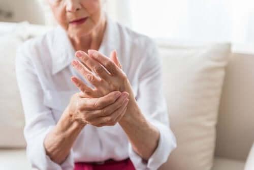 Donna anziana con artrite psoriasica alle mani