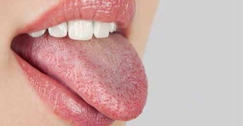 Sindrome della bocca che brucia