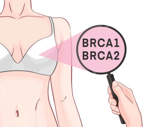 Geni BRCA1 e BRCA2 e tumore al seno