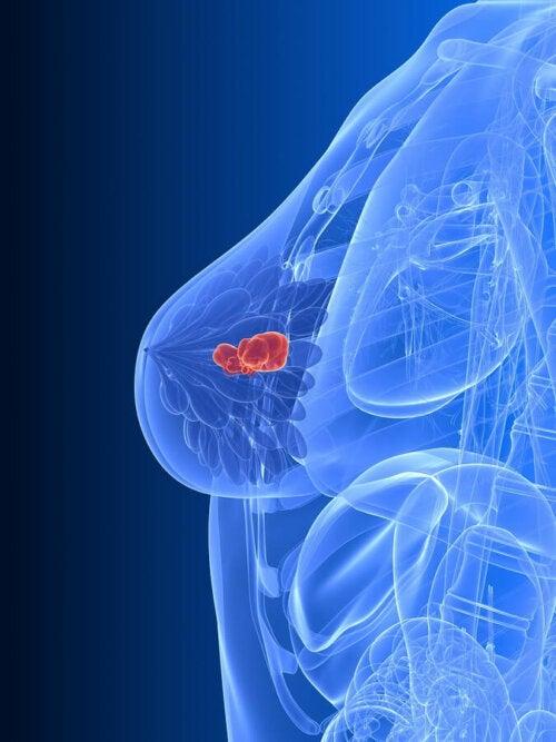 Immagine del corpo femminile e cancro al seno
