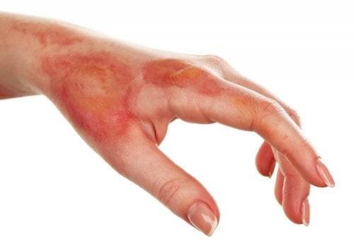Necrosi della pelle: cause e sintomi
