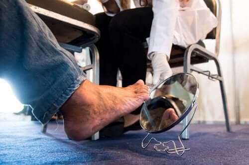 Persona con neuropatia diabetica al piede