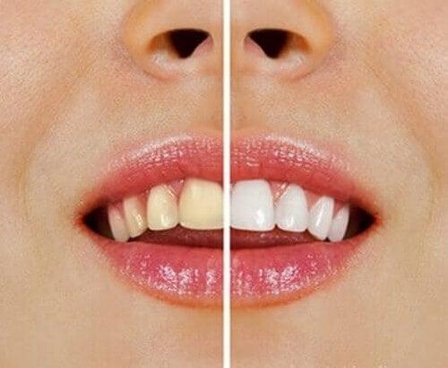 Prodotti naturali per sbiancare i denti