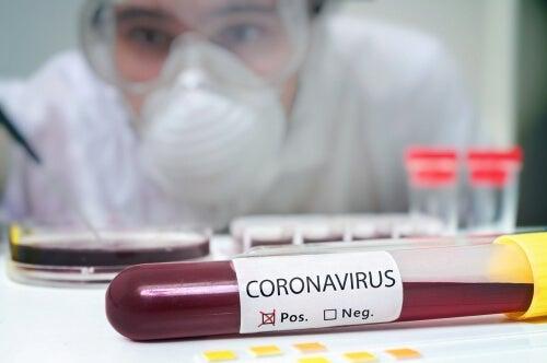 Sangue affetto da Coronavirus