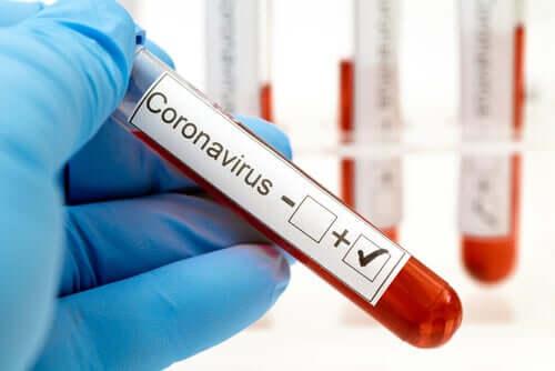 Provetta analisi del sangue per coronavirus