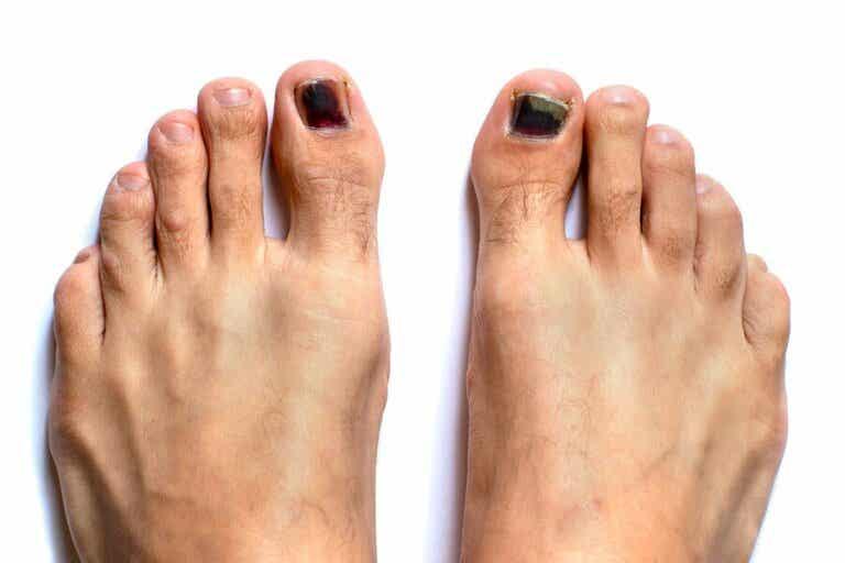 Unghie nere dei piedi: come trattarle?