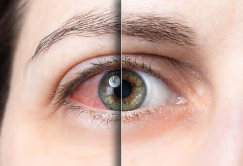 Occhio rosso con congiuntivite