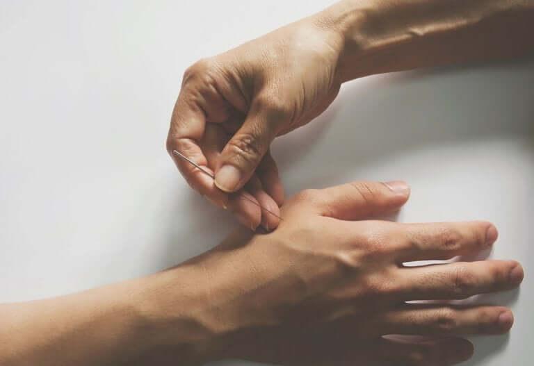 Agopuntura per ridurre il dolore neuropatico