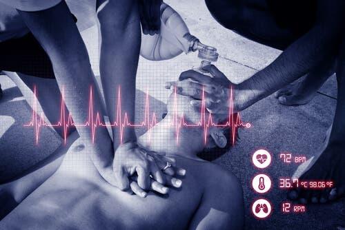 Manovra per arresto cardiorespiratorio