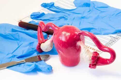 Tipi di isterectomia e conseguenze