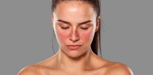 Donna con lupus
