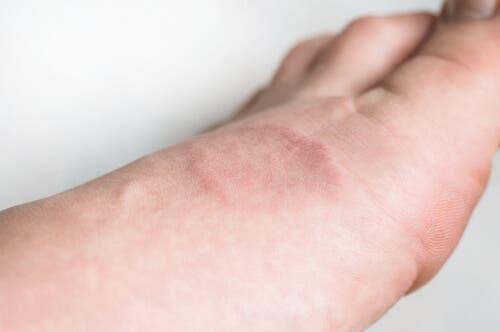 Il granuloma anulare: di cosa si tratta?