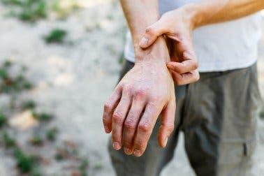 Uomo che si gratta la mano