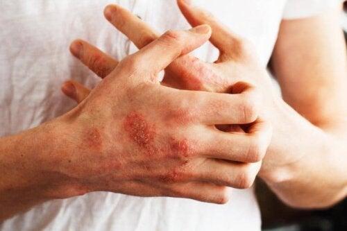 Benefici della salsapariglia per la psoriasi