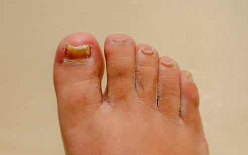 Onicomicosi di mani e piedi: quali rimedi?