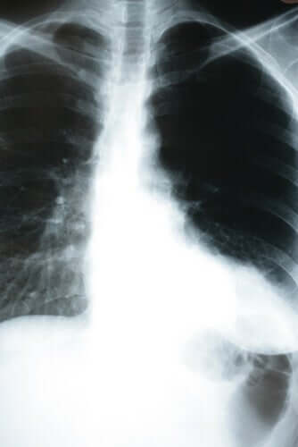 Polmonite silenziosa, radiografia