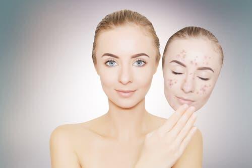 Creme depigmentanti: cosa sono e come applicarle