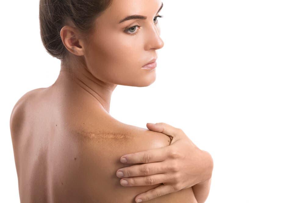 Benefici dell'olio essenziale di citronella, donna con cicatrice sulla spalla