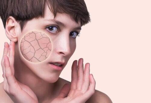 Nemici della pelle che spesso ignoriamo