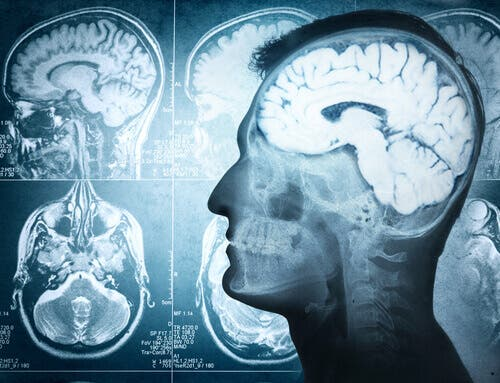 Radiografia per ernia cerebrale