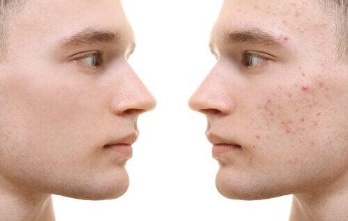 Curcuma per l'acne: benefici e applicazione