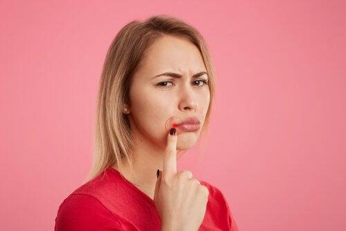 Trattare l'herpes labiale (simplex) con 5 rimedi