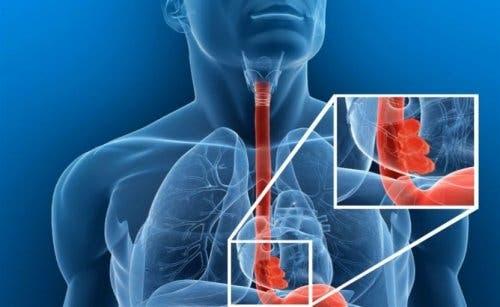 Corpo estraneo esofageo