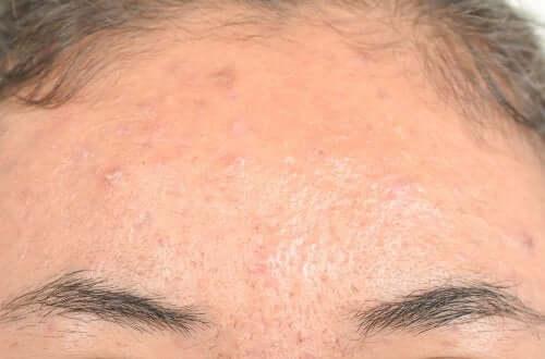 Rimedi naturali contro la dermatite seborroica