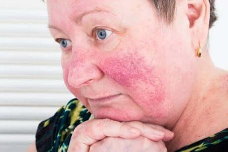 Donna con acne rosacea sulle guance.
