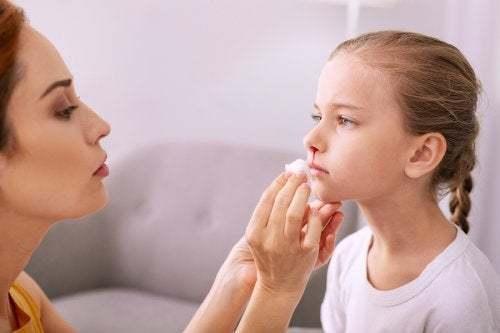 Sangue dal naso nei bambini, cosa fare?