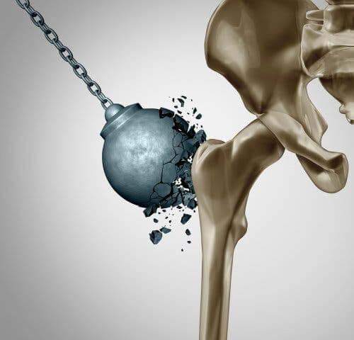 Conseguenze dell'osteoporosi dopo la menopausa